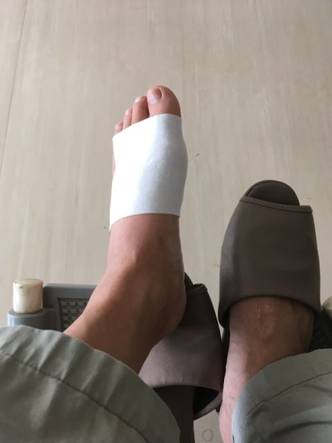 猛烈な痛みが足の親指に!骨折じゃなかったので安心しました!